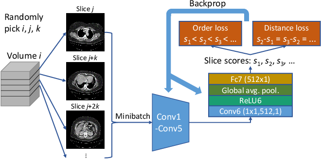 Figure 1 for Unsupervised Body Part Regression via Spatially Self-ordering Convolutional Neural Networks