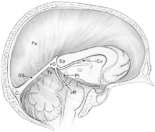 Pineal Gland Anatomy