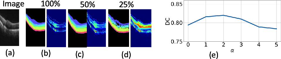 Figure 2 for Uncertainty guided semi-supervised segmentation of retinal layers in OCT images