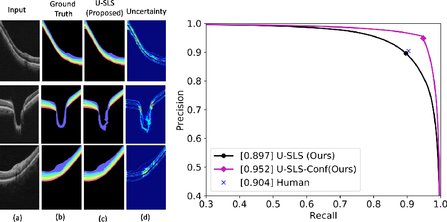 Figure 4 for Uncertainty guided semi-supervised segmentation of retinal layers in OCT images