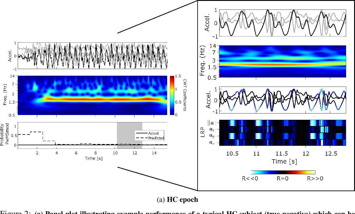 Figure 4 for Interpretable Deep Learning for the Remote Characterisation of Ambulation in Multiple Sclerosis using Smartphones