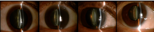 Figure 3 for Machine Learning for Cataract Classification and Grading on Ophthalmic Imaging Modalities: A Survey