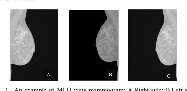 Figure 2 for Using Machine Learning to Automate Mammogram Images Analysis