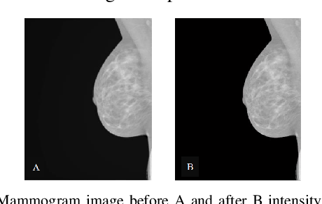 Figure 4 for Using Machine Learning to Automate Mammogram Images Analysis