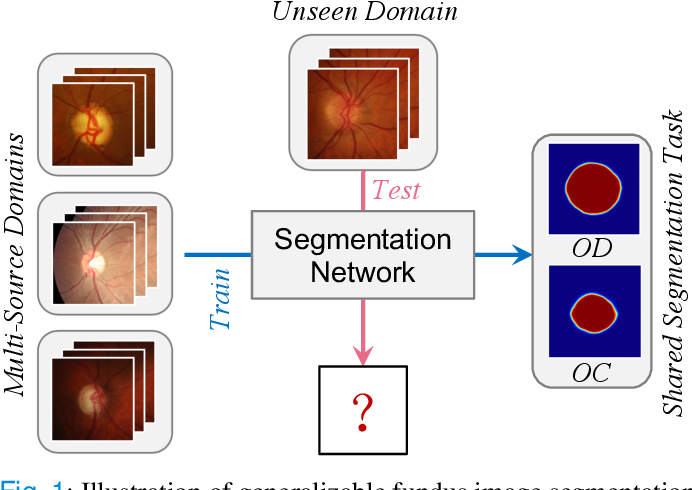 Figure 1 for DoFE: Domain-oriented Feature Embedding for Generalizable Fundus Image Segmentation on Unseen Datasets
