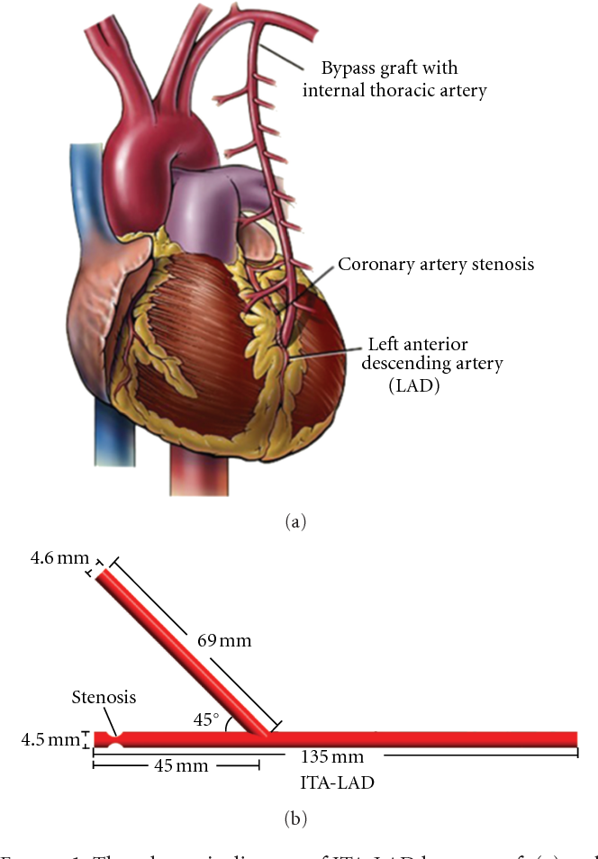 Impact of Competitive Flow on Hemodynamics in Coronary Surgery ...