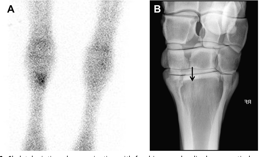Figure 2 from Imaging of the equine proximal suspensory ligament ...