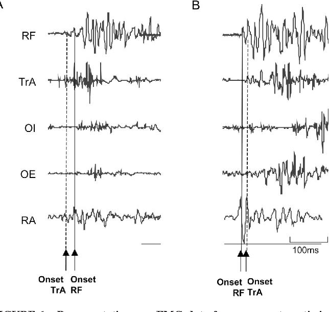 FIGURE 1—Representative raw EMG data for an asymptomatic individual (A) and an individual with long-standing groin pain (B) in association with the active straight leg raise task (ASLR).