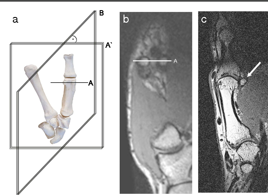 Osteoarthritis of the carpometacarpal joint of the thumb: a new MR ...