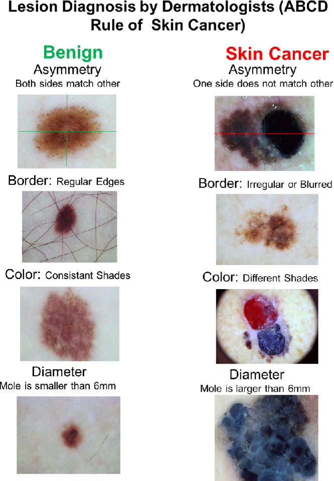 Figure 1 for Automatic Lesion Boundary Segmentation in Dermoscopic Images with Ensemble Deep Learning Methods