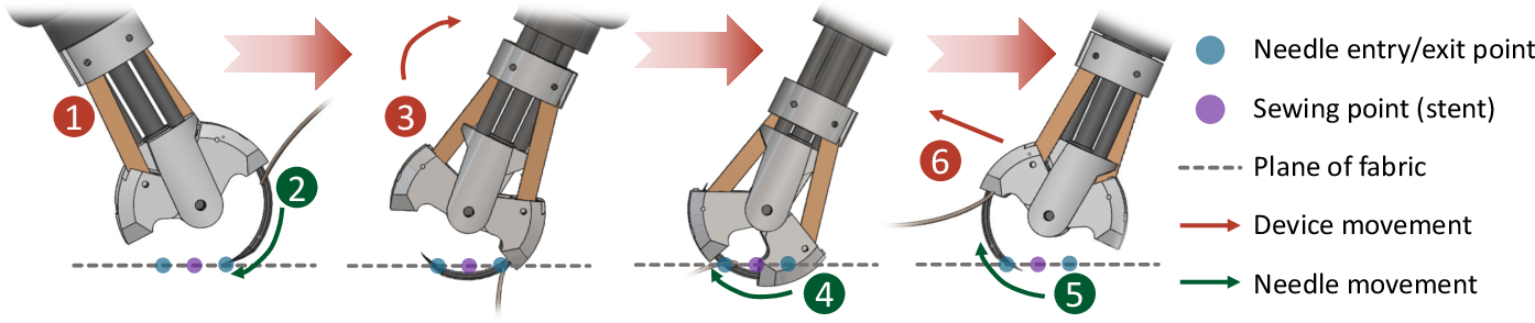 Figure 4 for Robotic Sewing and Knot Tying for Personalized Stent Graft Manufacturing