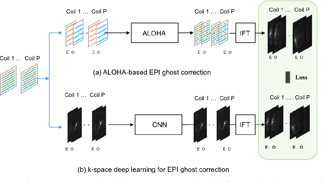 Figure 1 for k-Space Deep Learning for Reference-free EPI Ghost Correction