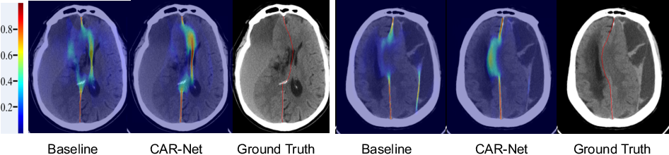 Figure 3 for Context-Aware Refinement Network Incorporating Structural Connectivity Prior for Brain Midline Delineation