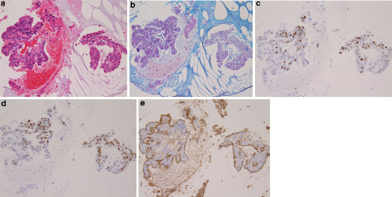 Fig. 4 a Microscopic findings of the CB method. Well-differentiated tubular adenocarcinoma (H&E 950). b AB–PAS 950. c Ki67LI [40%, 950. d Diffusely positive for p53 stain, 950. e Diffusely positive for MUC1 stain, 950. Same case as that shown in Fig. 3