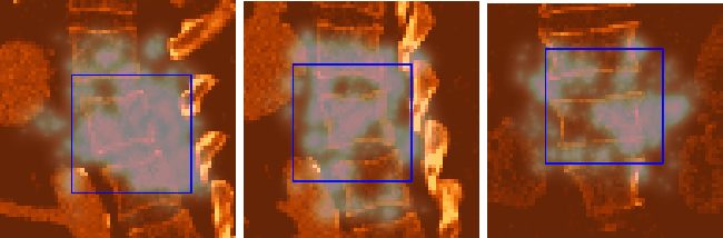 Figure 4 for An Artificial Agent for Robust Image Registration