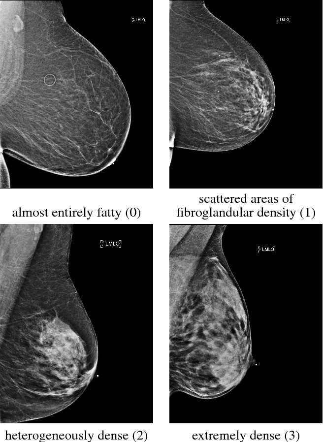Figure 1 for Breast density classification with deep convolutional neural networks