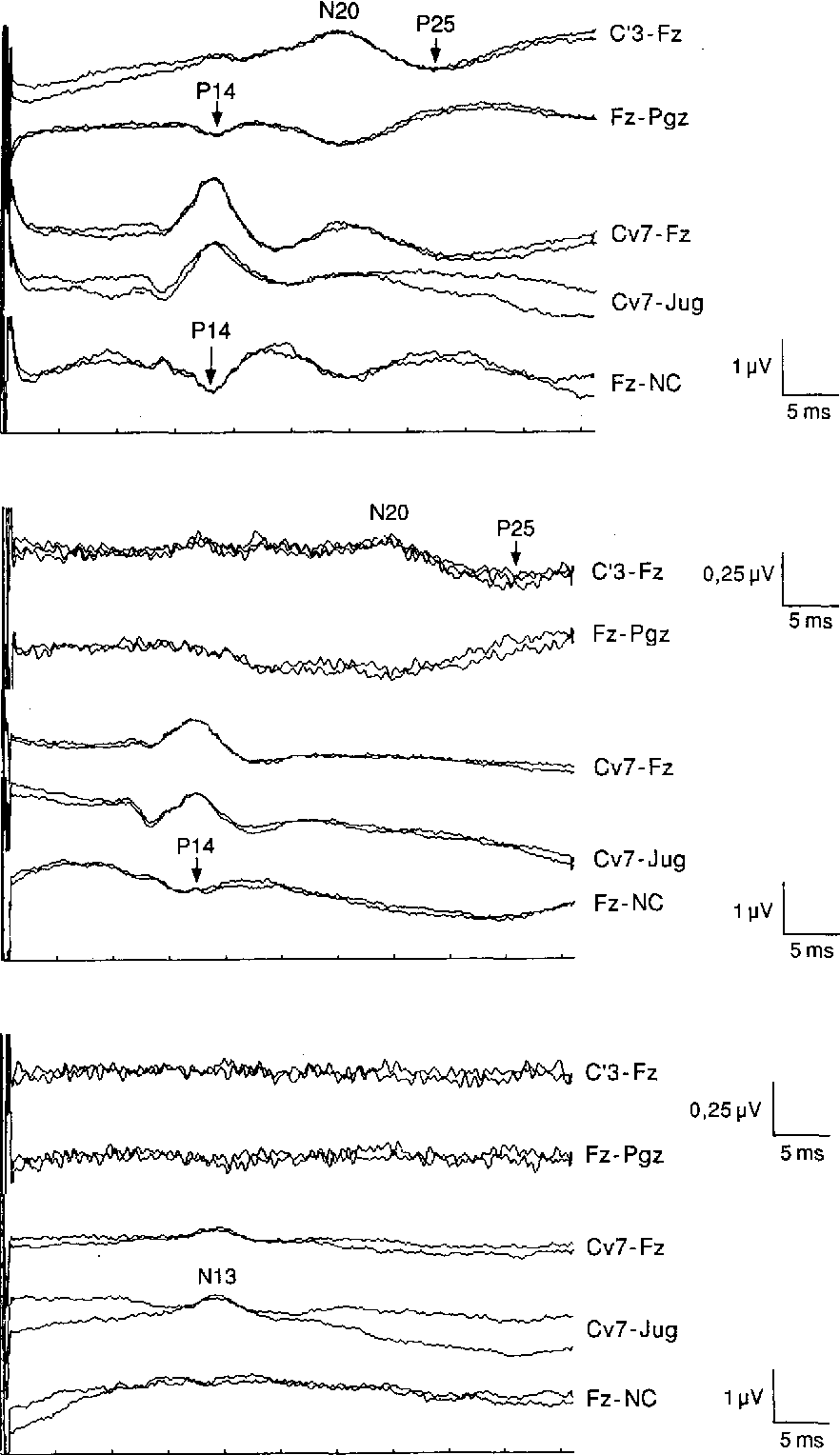 Preserved cortical somatosensory evoked potentials in