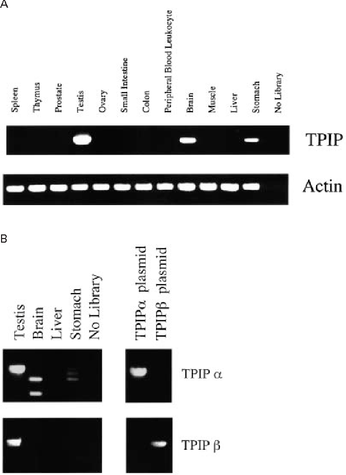 Figure 2 Tissue distribution of TPIP