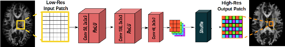 Figure 2 for Deeper Image Quality Transfer: Training Low-Memory Neural Networks for 3D Images
