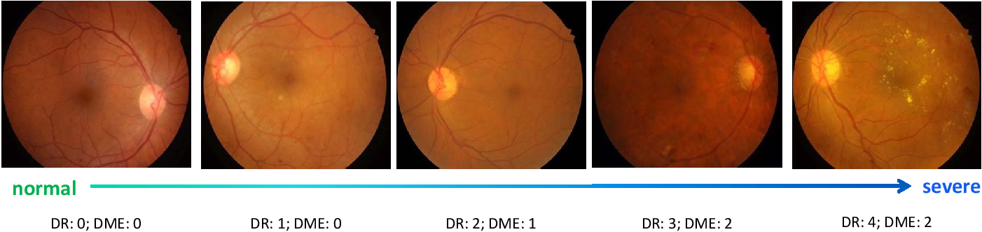 Figure 2 for CANet: Cross-disease Attention Network for Joint Diabetic Retinopathy and Diabetic Macular Edema Grading