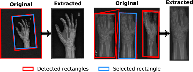Figure 4 for Self-Taught Semi-Supervised Anomaly Detection on Upper Limb X-rays