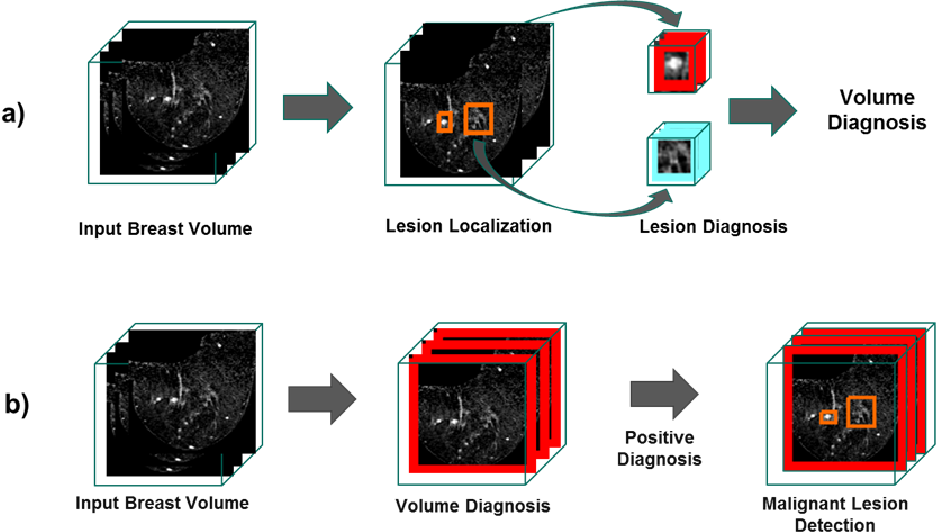Figure 3 for Pre and Post-hoc Diagnosis and Interpretation of Malignancy from Breast DCE-MRI