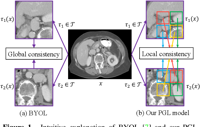 Figure 1 for PGL: Prior-Guided Local Self-supervised Learning for 3D Medical Image Segmentation