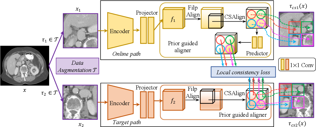 Figure 3 for PGL: Prior-Guided Local Self-supervised Learning for 3D Medical Image Segmentation