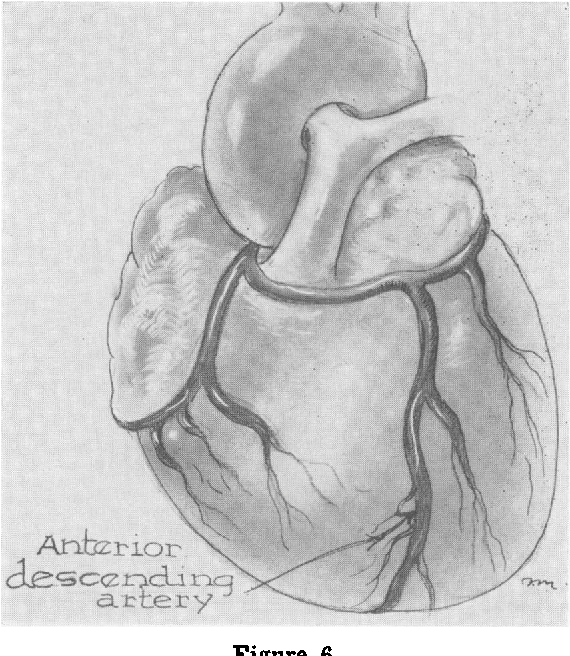 Surgical Anatomy Of The Coronary Artery Distribution In Congenital