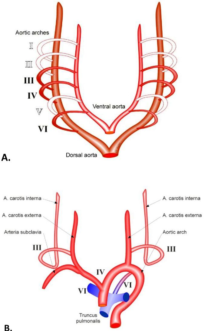 BILATERAL TORTUOUS INTERNAL CAROTID ARTERIES – a case report ...