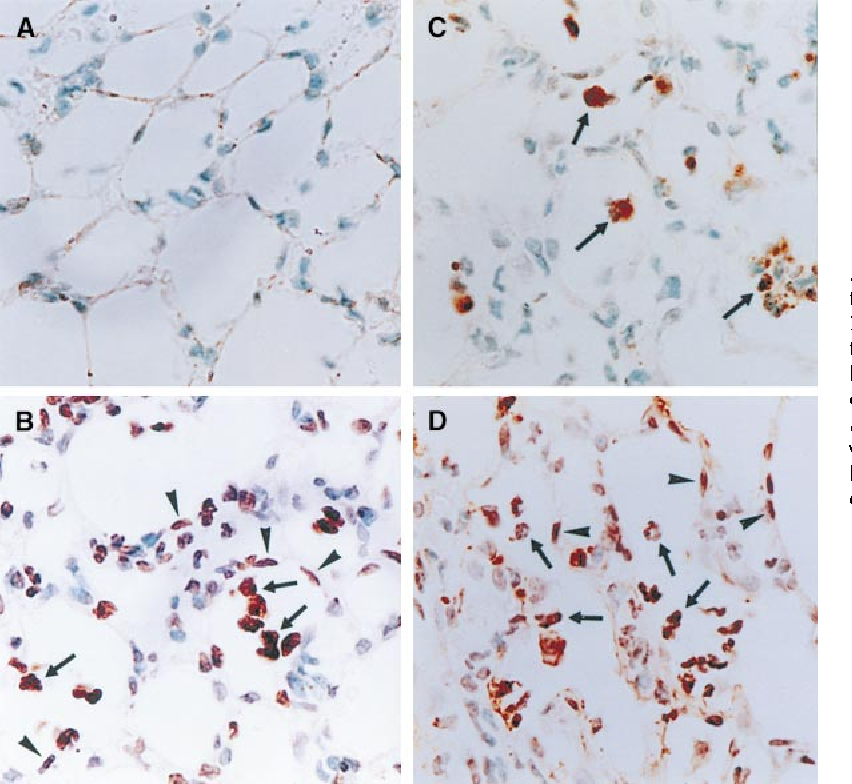 Figure 5. TUNEL staining of instilled lungs 1 d after instillation of 0.9% NaCl (A), 30 mg LPS (B), anti-Fas antibody 1 30 mg LPS (C), and concanamycin A 1 30 mg LPS (D). Positive staining is indicated by black-brown and the contrast background staining is green. Note that both alveolar wall cells and infiltrating inflammatory cells are positive in B and D, whereas only inflammatory cells are positive in C. Arrows with bars indicate inflammatory cells and arrows without bars indicate alveolar wall cells. Five mice were examined in each group. Original magnification: 3200.