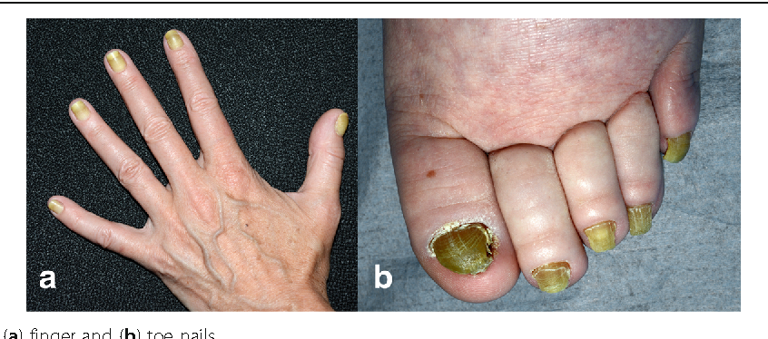 Yellow nail syndrome: a review - Semantic Scholar