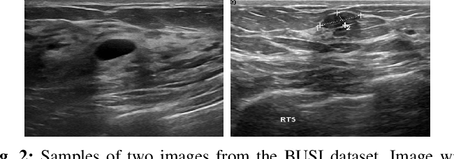 Figure 2 for Comparison of different CNNs for breast tumor classification from ultrasound images