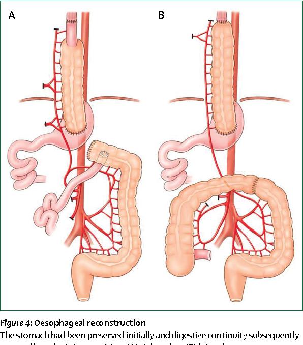 Figure 4 from Caustic ingestion. - Semantic Scholar
