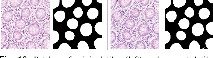 Figure 2 for SAFRON: Stitching Across the Frontier for Generating Colorectal Cancer Histology Images