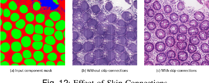 Figure 4 for SAFRON: Stitching Across the Frontier for Generating Colorectal Cancer Histology Images
