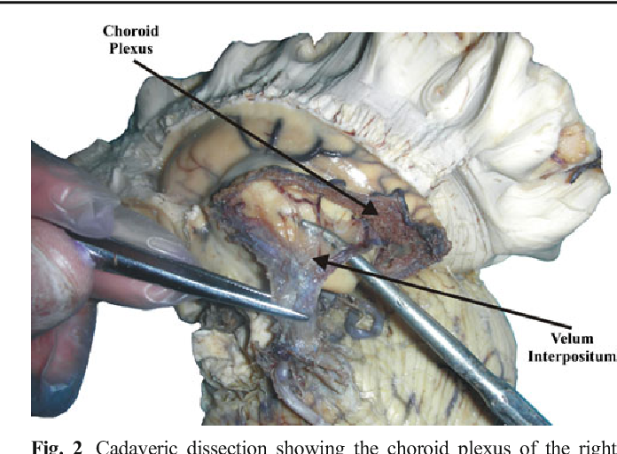 The Choroid Plexus A Comprehensive Review Of Its History Anatomy