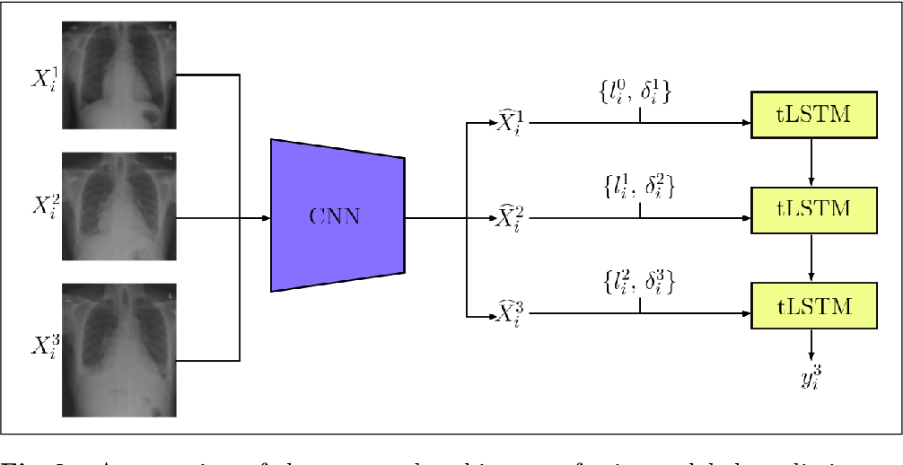 Figure 3 for Longitudinal detection of radiological abnormalities with time-modulated LSTM