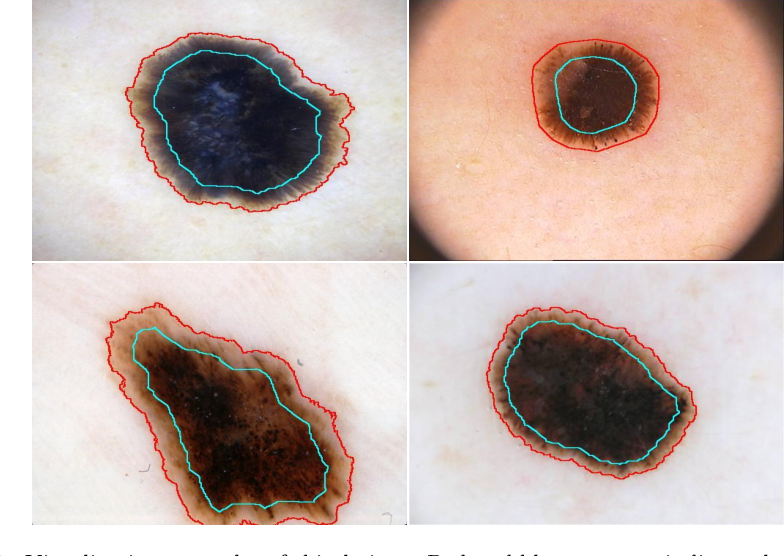 Figure 1 for Knowledge-aware Deep Framework for Collaborative Skin Lesion Segmentation and Melanoma Recognition