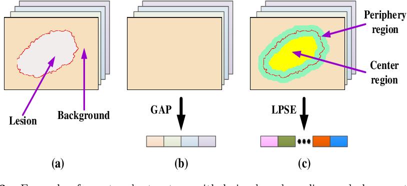 Figure 4 for Knowledge-aware Deep Framework for Collaborative Skin Lesion Segmentation and Melanoma Recognition