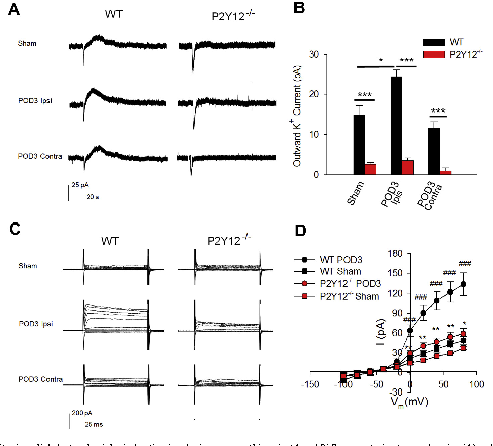Fig. 2. P2Y12 receptors limit microglial electrophysiological activation during neuropathic pain. (A and B) Representative traces showing (A) and quantified summaries of (B) outward currents in response to ATP (1 mM) puff application to microglia from sham and SNT-surgery WT and P2Y12 / mice. n = 3–5 cells per group. Holding potential: 20 mV. Data are shown as mean ± SEM. *P < 0.05; ***P < 0.001. (C and D) Representative traces showing (C) and quantified summaries of (D) depolarisation steps from 100 mV to 80 mV in microglia from sham and SNT-surgery WT and P2Y12 / mice. n = 10 cells for WT sham group, n = 17 cells for WT POD3 group, n = 3 cells for P2Y12 / sham group, n = 11 cells for P2Y12 / POD3 group. Holding potential: 60 mV. Data are shown as mean ± SEM. *P < 0.05; **P < 0.01; ***P < 0.001 compared with WT POD 3; ###P < 0.001 compared with WT sham.