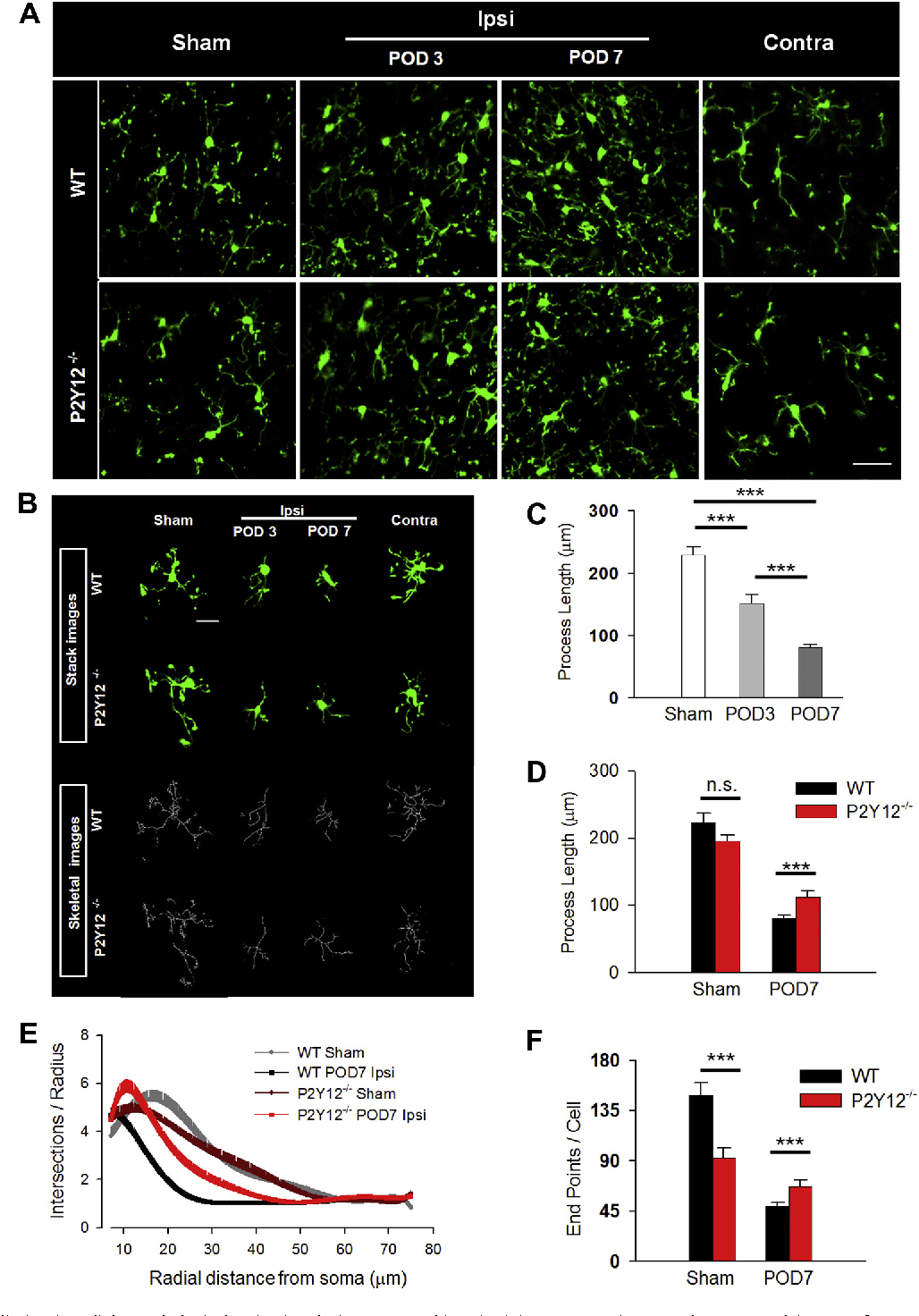 Fig. 3. P2Y12 receptors limit microglial morphological activation during neuropathic pain. (A) Representative two-photon z-stack images of GFP-expressing microglia in the spinal cord dorsal horn of sham (left) ipsilateral (left and right center) and contralateral (right) dorsal horn from WT (top) and P2Y12 / (bottom) tissue slices. Scale bar is 200 lm. (B) Representative raw (green) and transformed skeletal (grey) images from sham (left) ipsilateral (left and right center) and contralateral (right) dorsal horn from WT (top) and P2Y12 / (bottom) tissues. Scale bar is 20 lm. (C) Quantification of microglial process length in WT sham as well POD 3 and 7 following SNT surgery showing progressive shortening of process lengths. n = 6–9 slices per group (from 3 mice). Data are shown as mean ± SEM. ***P < 0.001. (D) Quantification of microglial process length in WT and P2Y12 / microglial at POD 7 following SNT surgery in WT and P2Y12 / tissues. n = 8–11 slices per group (form 4 mice). Data are shown as mean ± SEM. ***P < 0.001. (E and F) Sholl (E) and endpoint voxel (F) analysis of microglia fromWT and P2Y12 / tissues in the sham and at POD 7 following SNT surgery. n = 14–25 cells per group from 5 to 7 mice for Sholl analysis and n = 8–11 slices per group from 4 mice for endpoint voxel analysis. Data are shown as mean ± SEM. n.s., no significance. *P < 0.05; ***P < 0.001.