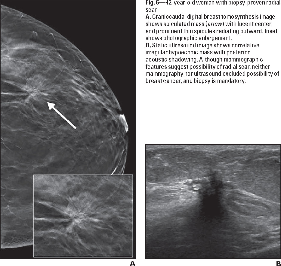 Radial scar in the breast