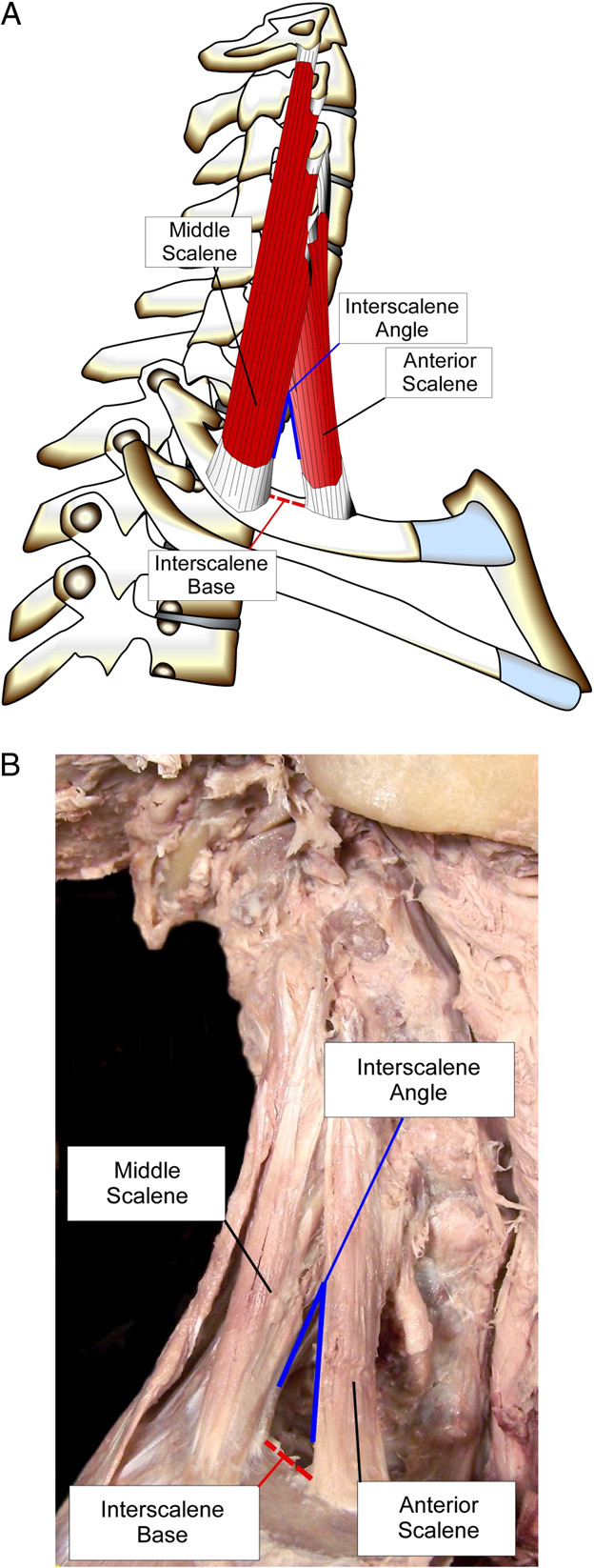 Descriptive anatomy of the interscalene triangle and the ...
