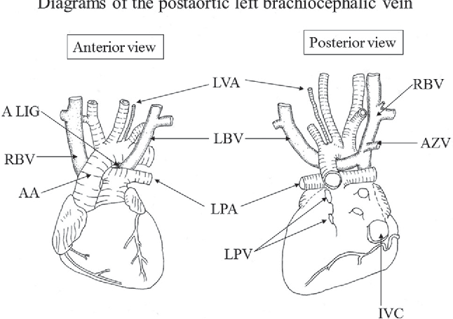 Anatomical study of the coexistence of the postaortic left ...