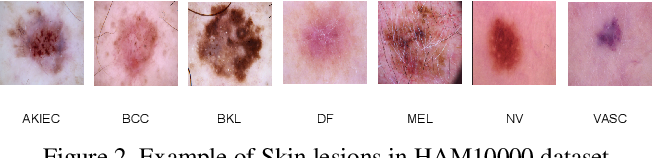 Figure 3 for Soft-Attention Improves Skin Cancer Classification Performance