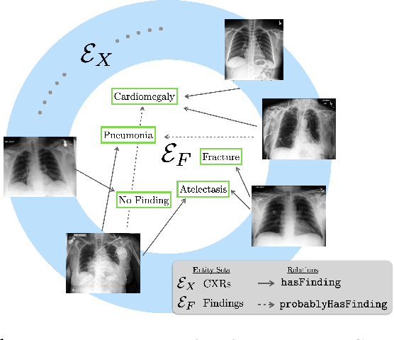 Figure 1 for A Relational-learning Perspective to Multi-label Chest X-ray Classification