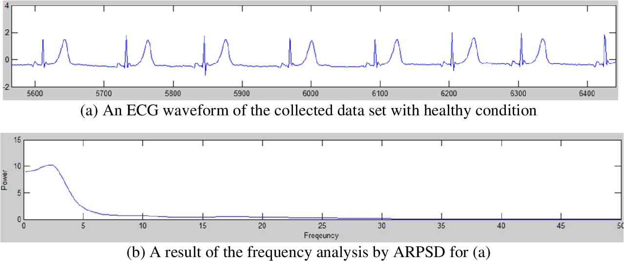 [pdf] system design and motion artifact removal algorithm implementation  for ambulatory women ecg measurement system:e-bra system - semantic scholar
