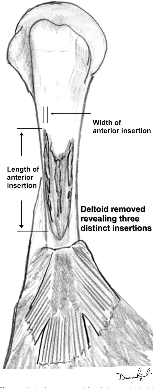 The Anatomy Of The Deltoid Insertion Semantic Scholar