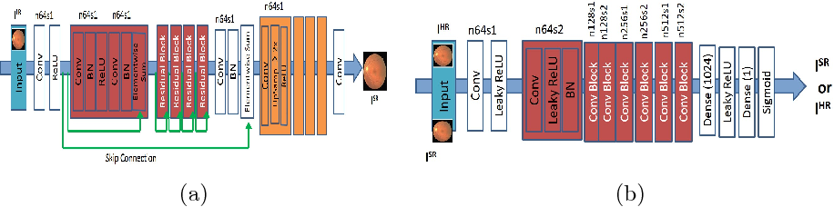 Figure 3 for Retinal Vasculature Segmentation Using Local Saliency Maps and Generative Adversarial Networks For Image Super Resolution